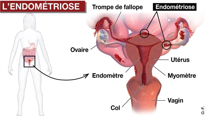 Endometriose - Illustration Ouest France